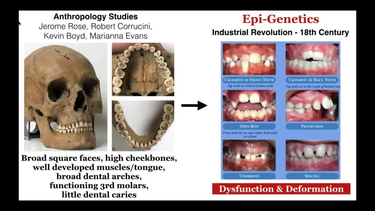 Malocclusion and Breathing Disorders_ Uncovering Their Relationship
