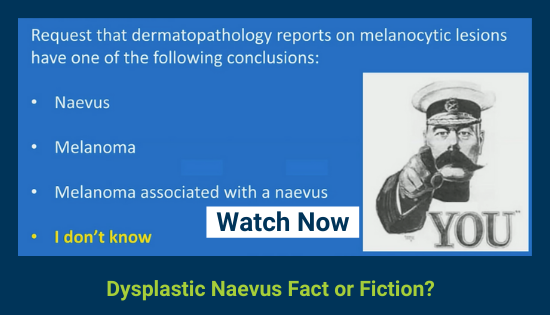 DERMCL Cliff Rosendahl - Dysplastic Naevus_ Fact or Fiction_