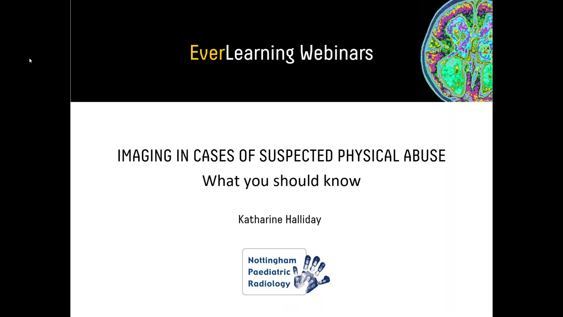 Everlight Radiology Webinar _ Imaging of suspected physical abuse.