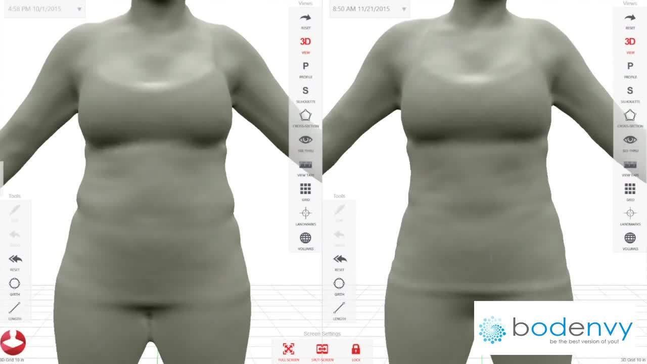 3D BodEnvy CoolSculpting Orlando Body Sculpting Med Spa