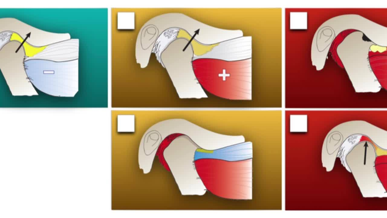 Educating patients about the TMJ joint (4 different phases of the joint) (1)
