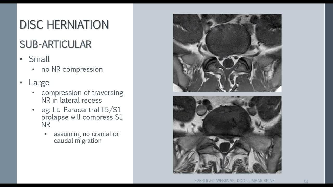 EverLearning Radiology Webinar_ MRI of Lumbar Degenerative Disc Disease with Dr Asif Saifuddin