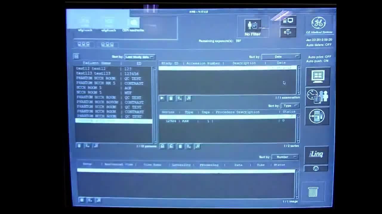 GE Senographe 2000D Recent Calibrations