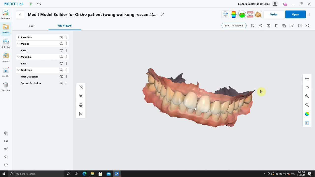 1. Medit_Model_Builder_Ortho Model_Trim ASSIGN DATA