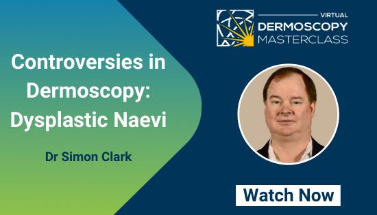 Dr Simon Clark DERMCL_ Controversies in dermoscopy_ Dysplastic naevi