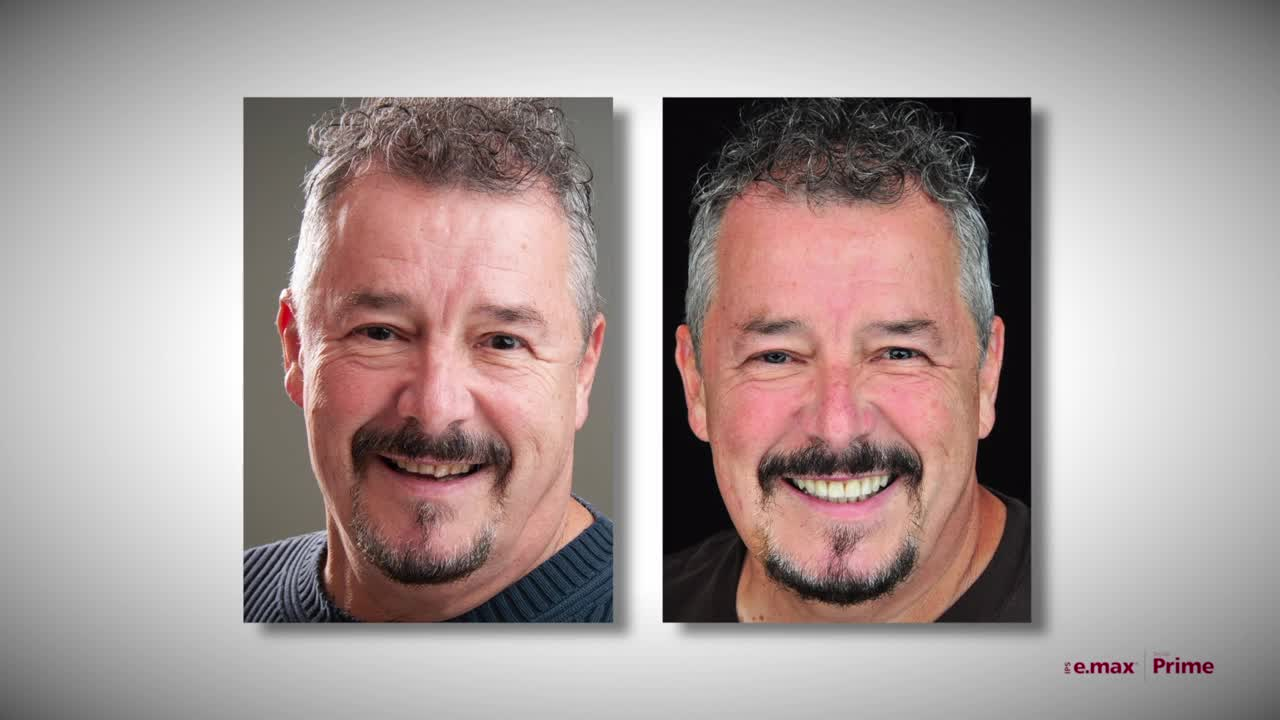 Popular post - Watch as a patient's smile makeover brings tears of joy - Bob's Story