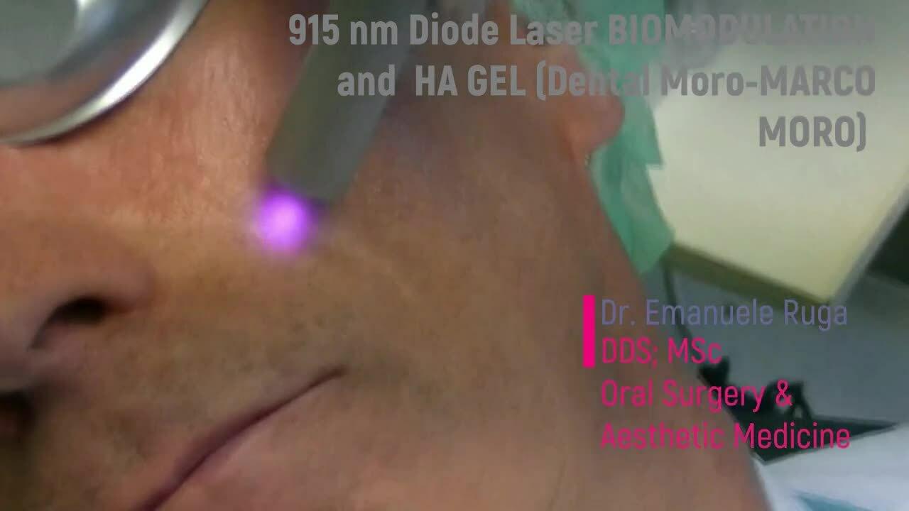 Pocket laser laser a diodo