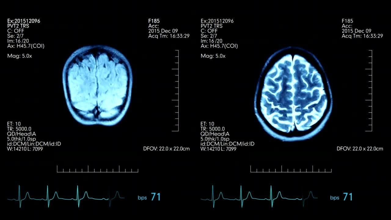fMRI scan - Hoe werkt fMRI? Neuromarketing