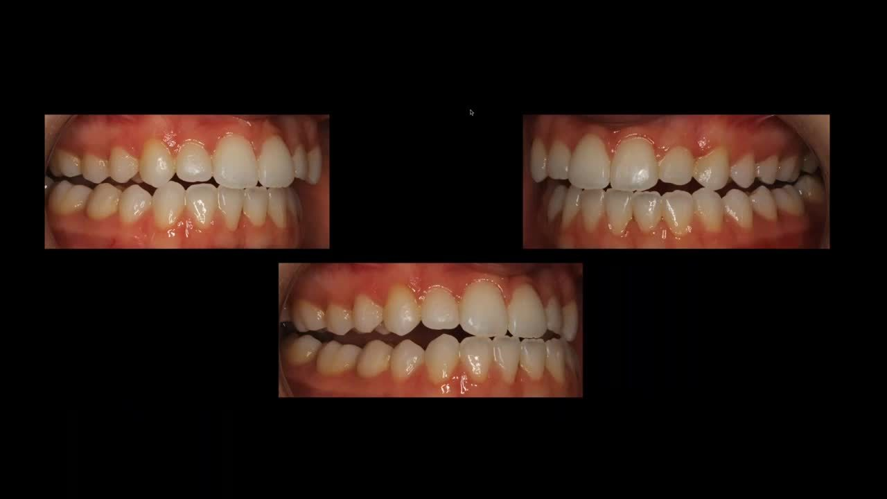 Occlusal Principles for Esthetic and Every Day Dentistry with Dr. Ian Buckle