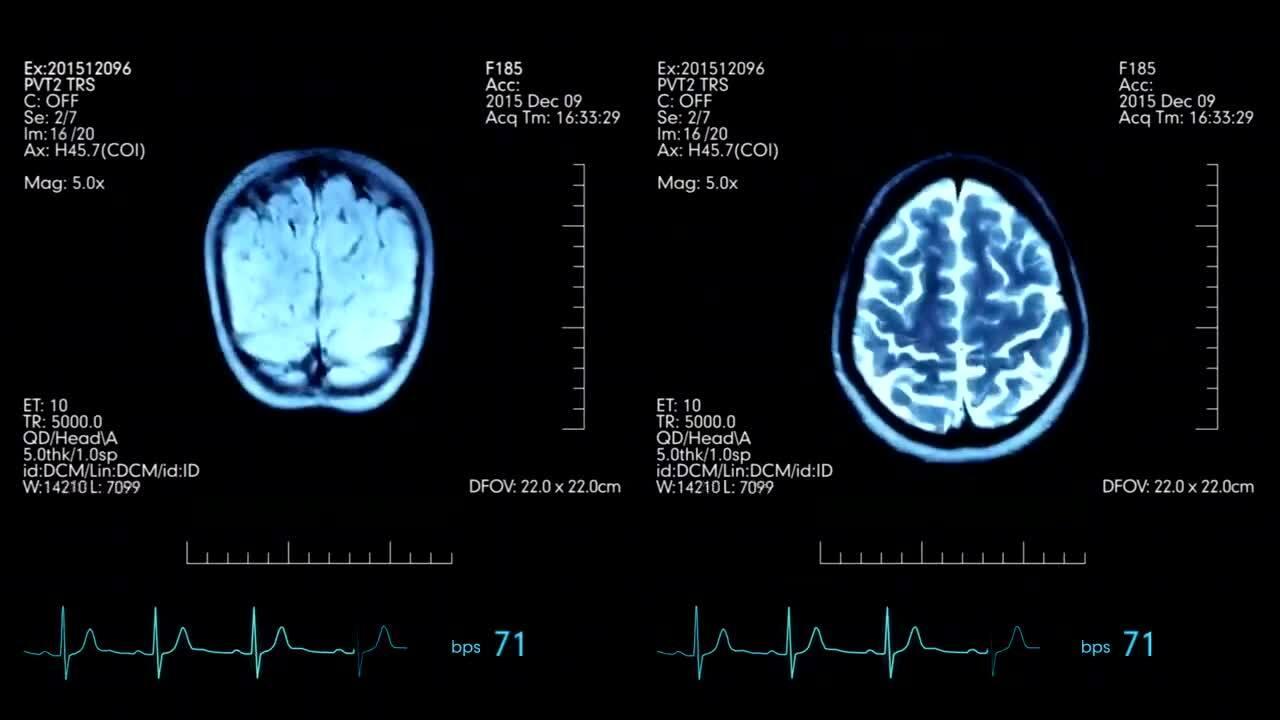 fMRI-scan-Hoe-werkt-fMRI-Neuromarketing