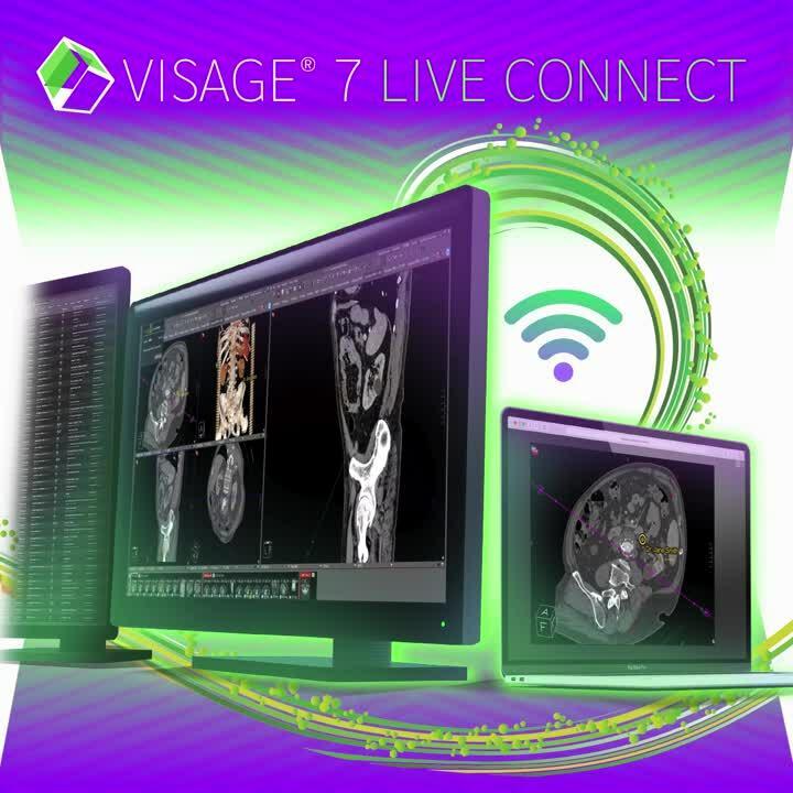 Visage 7 Live Connect