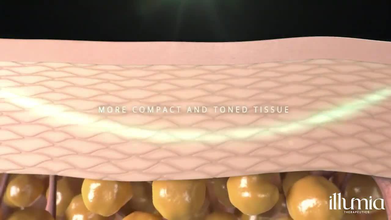Onda Coolwaves Slim Science by Illumia Therapeutics