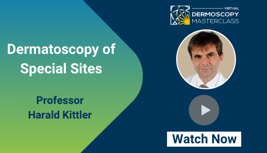 Dermatoscopy of special sites - Harald Kittler - DRMCL (1)