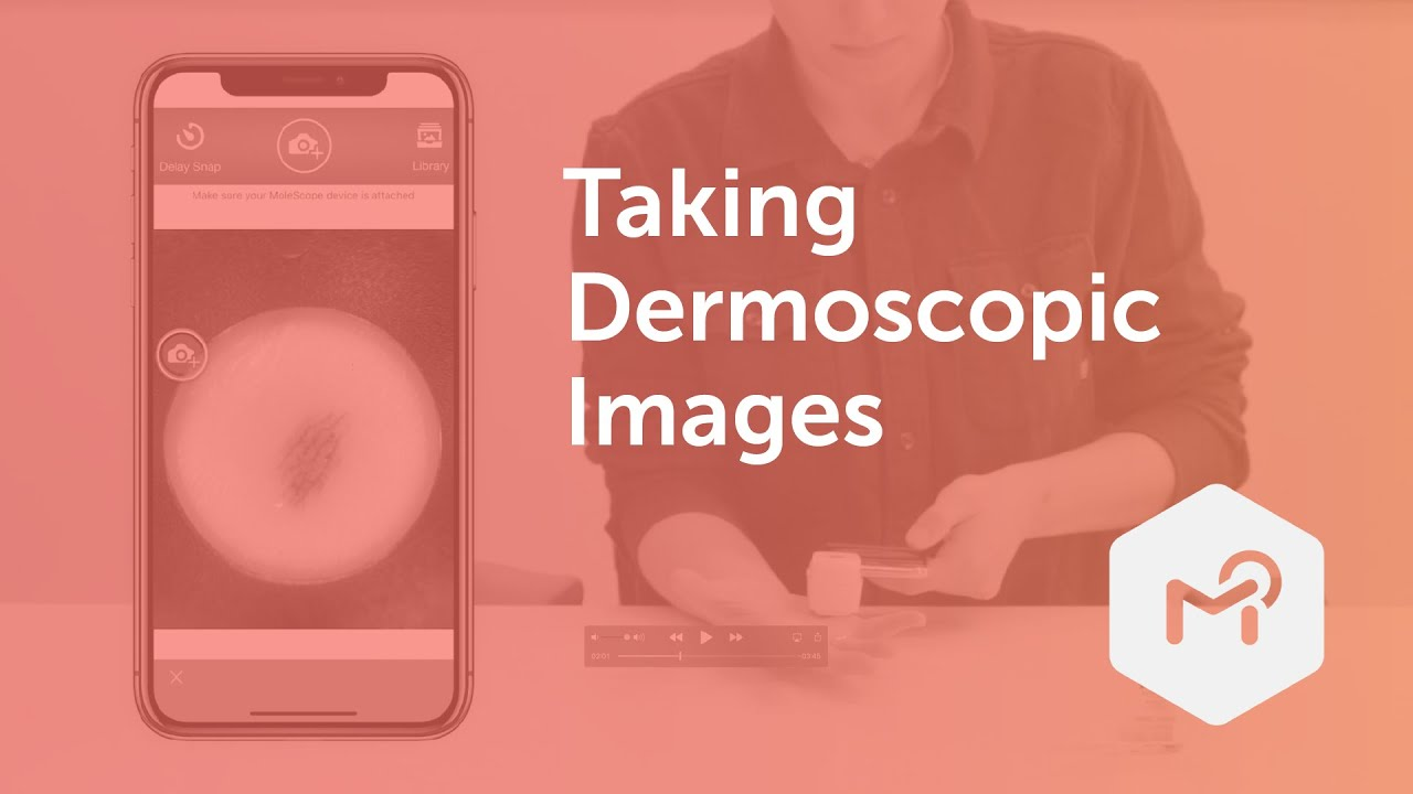 MoleScope _ Your Guide to Dermoscopic Imaging [final]