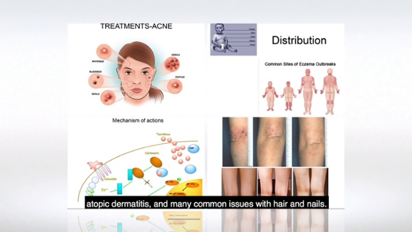 CAPTIONS STANDARD General Dermatology DTL promo video w Richard Usatine