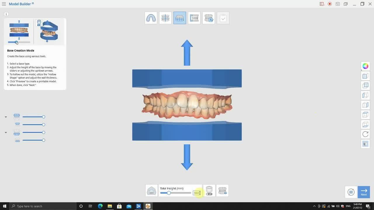 4. Medit_Model_Builder_Ortho Model_Trim BASE HEIGHT