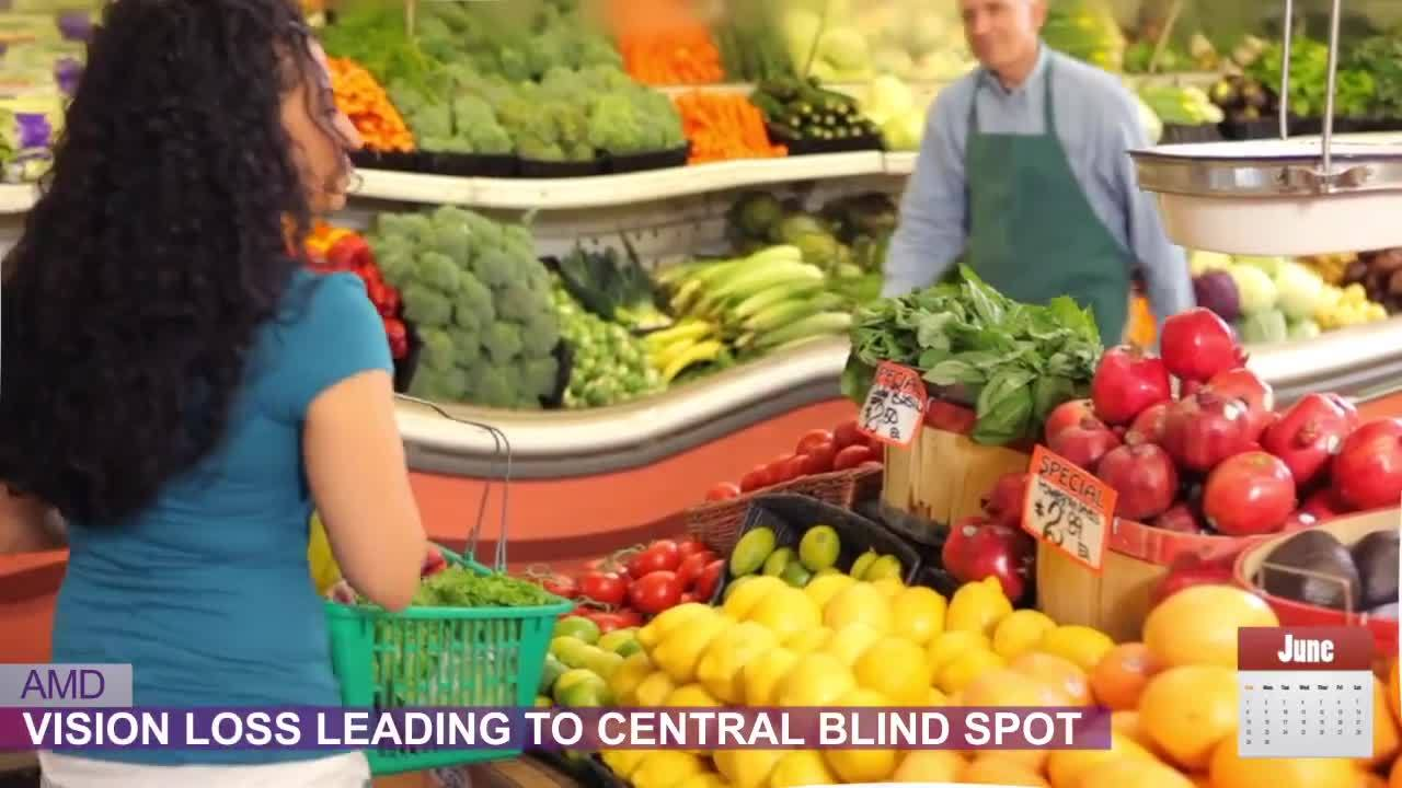 Did You Know Age-Related Macular Degeneration