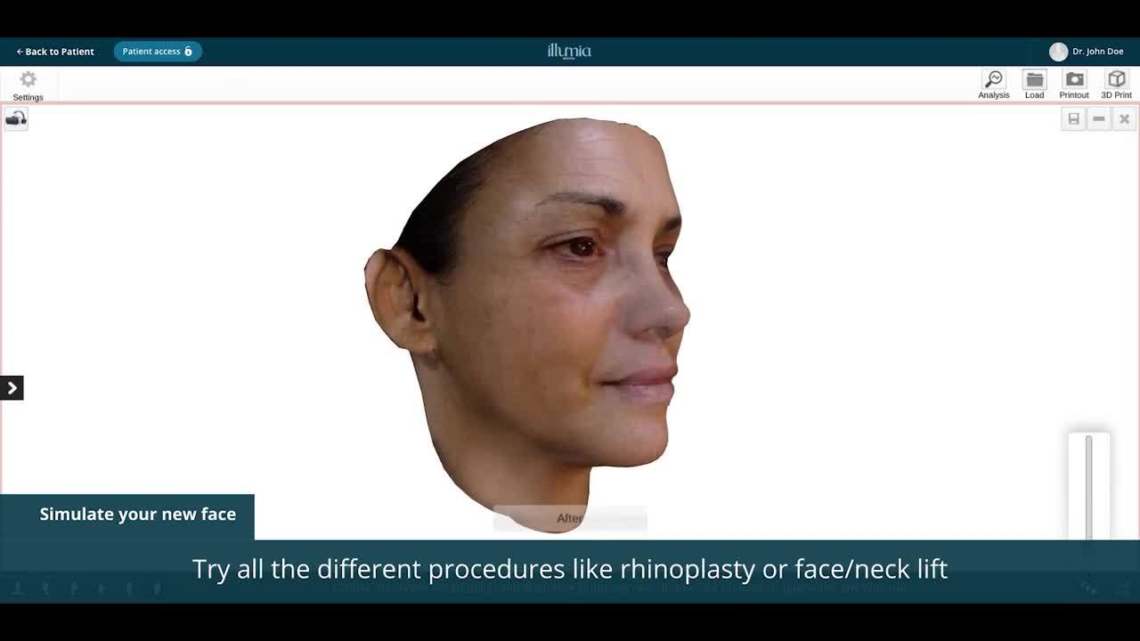 3D Virtual Consultation for Face, Body and Breast Enhancement by Illumia Medical