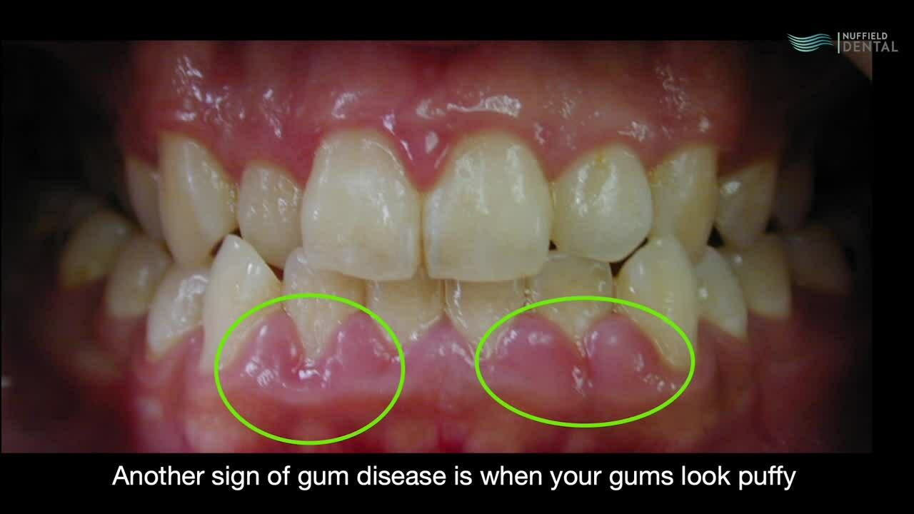 How To Tell Gum Disease